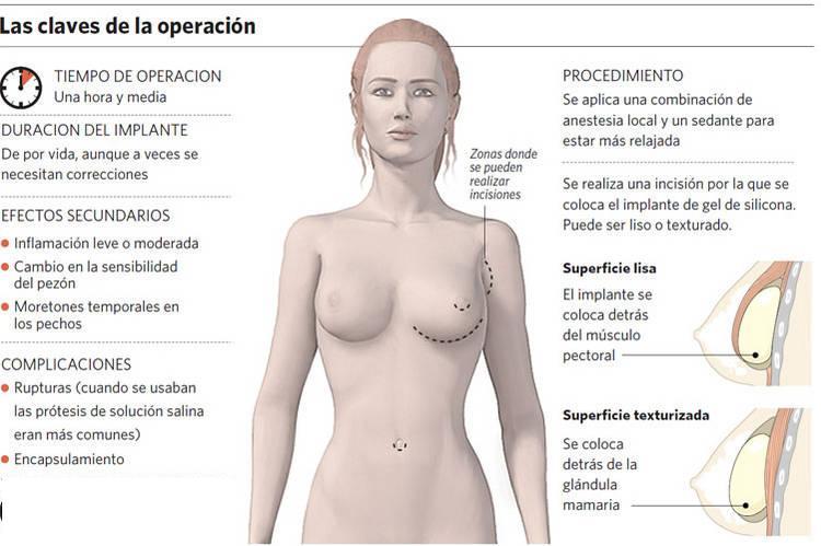 Implantes mamarios y actividad física Mundo